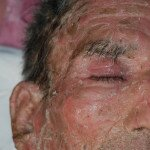 skin-infection-face-closeup